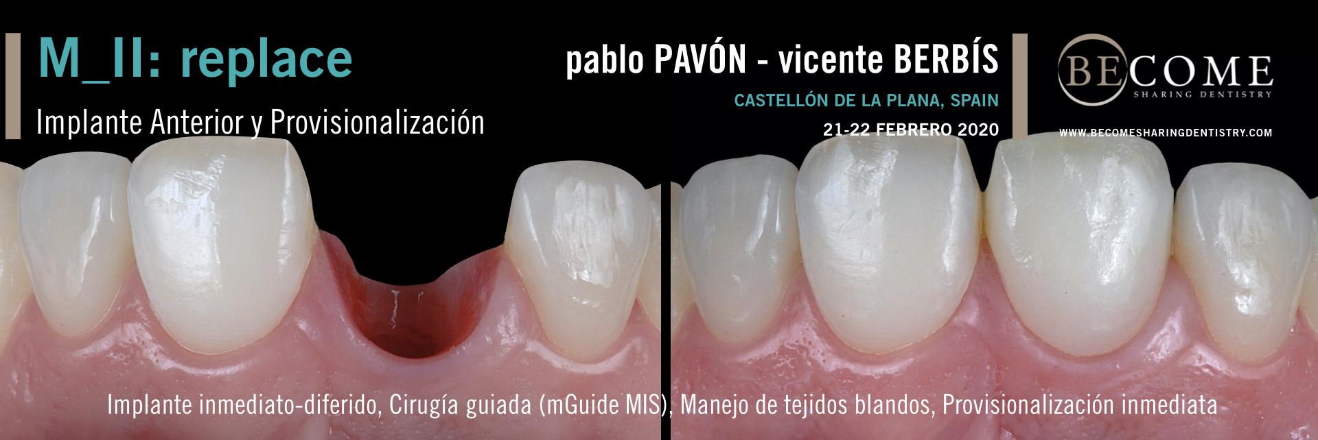MÓDULO II_REPLACE<br>Implante Unitario Anterior